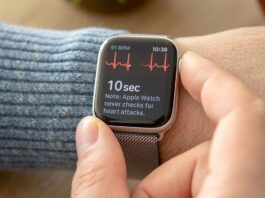 Apple Watch Series 4 ECG giovani pazienti